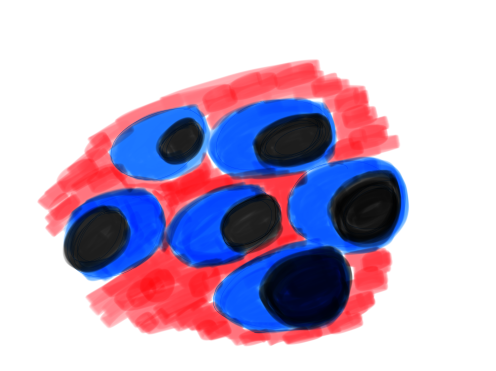 Células plasmáticas proliferando en la médula ósea